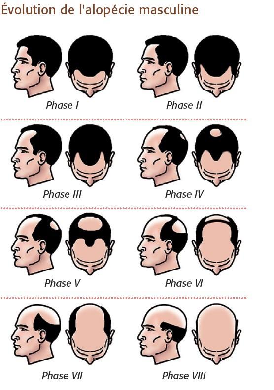 perte de cheveux - évolution de l'alopécie masculine